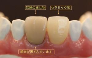 歯肉の黒ずみ