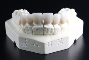 tooth-replacement-759929_1280